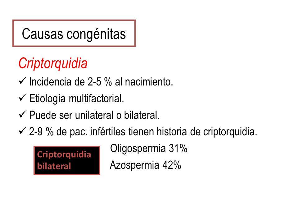 Causas congénitas Criptorquidia Incidencia de 2-5 % al nacimiento.