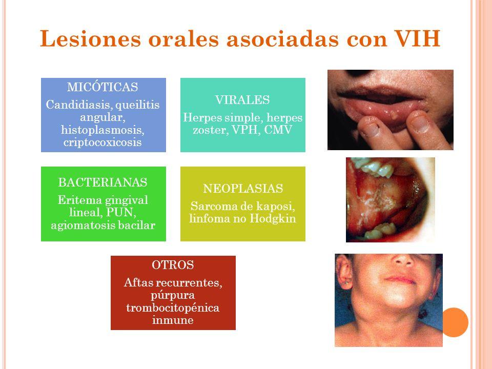 Lesiones orales asociadas con VIH
