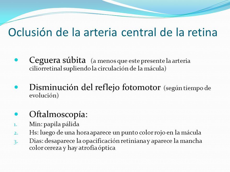 Oclusión de la arteria central de la retina
