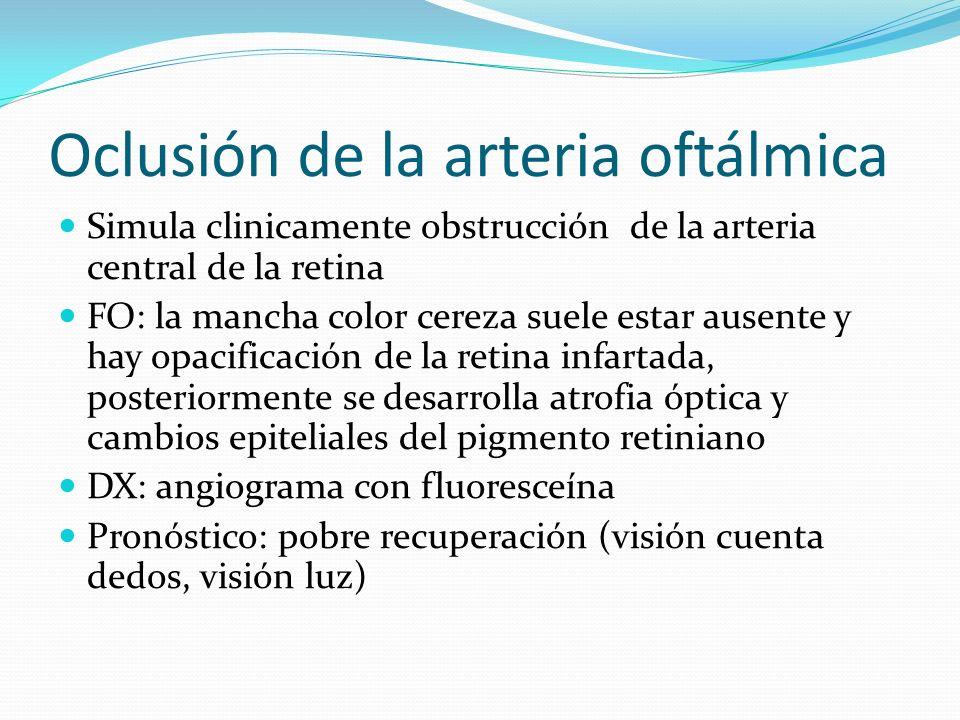 Oclusión de la arteria oftálmica
