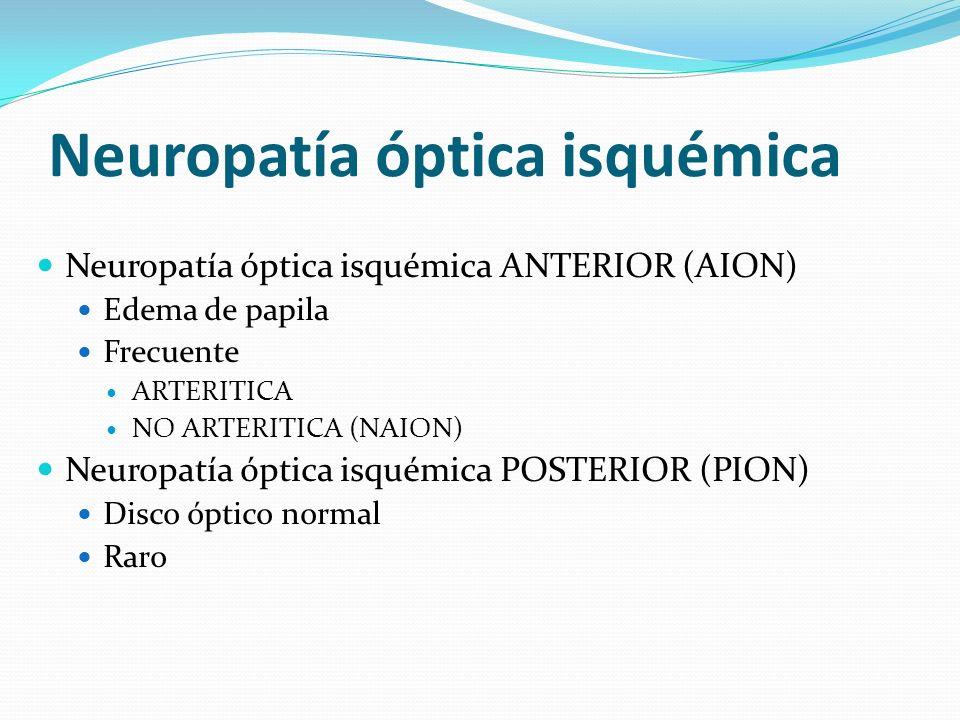Neuropatía óptica isquémica