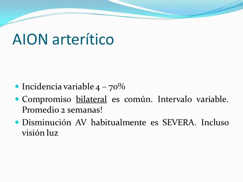 AION arterítico Incidencia variable 4 – 70%