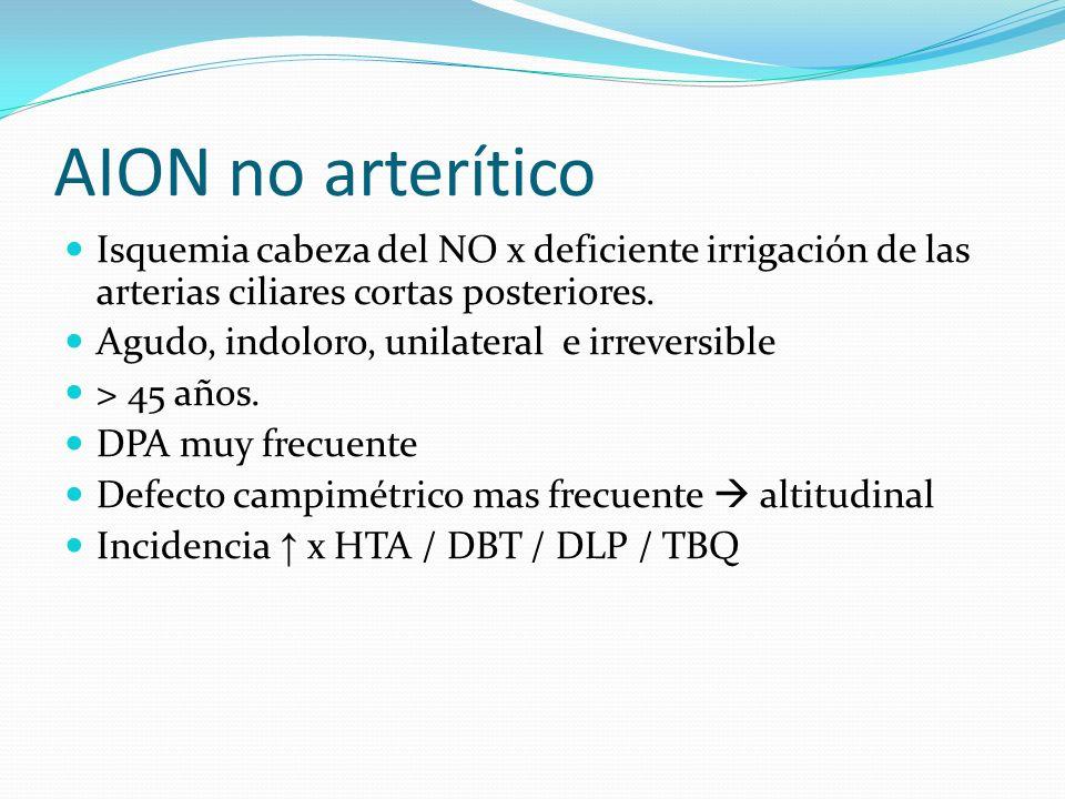 AION no arterítico Isquemia cabeza del NO x deficiente irrigación de las arterias ciliares cortas posteriores.