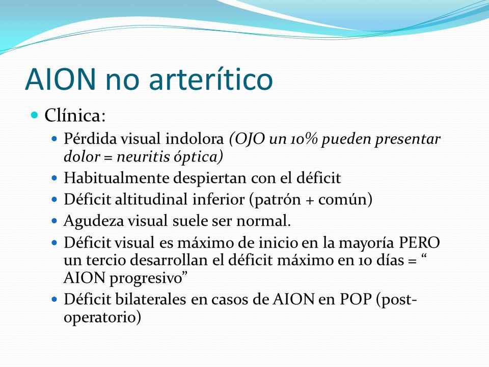 AION no arterítico Clínica:
