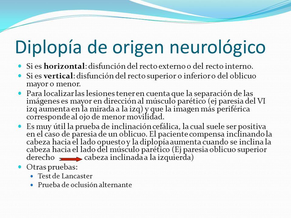Diplopía de origen neurológico
