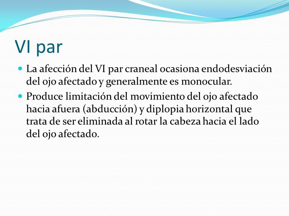 VI parLa afección del VI par craneal ocasiona endodesviación del ojo afectado y generalmente es monocular.