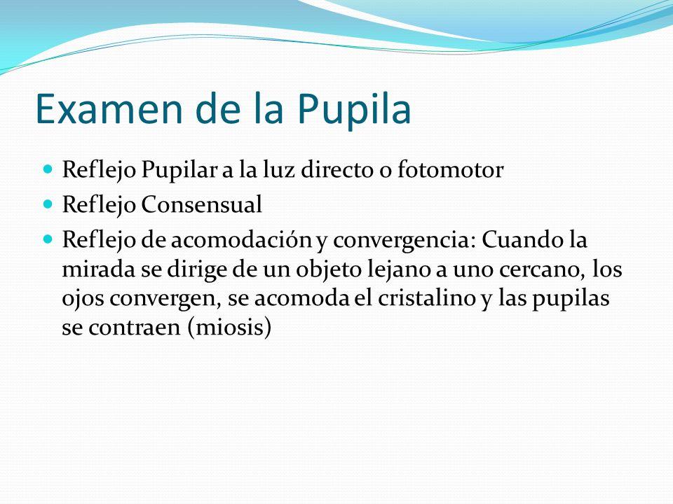 Examen de la Pupila Reflejo Pupilar a la luz directo o fotomotor