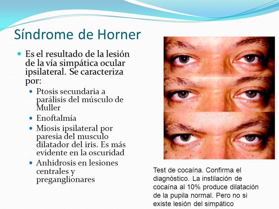 Síndrome de HornerEs el resultado de la lesión de la vía simpática ocular ipsilateral. Se caracteriza por: