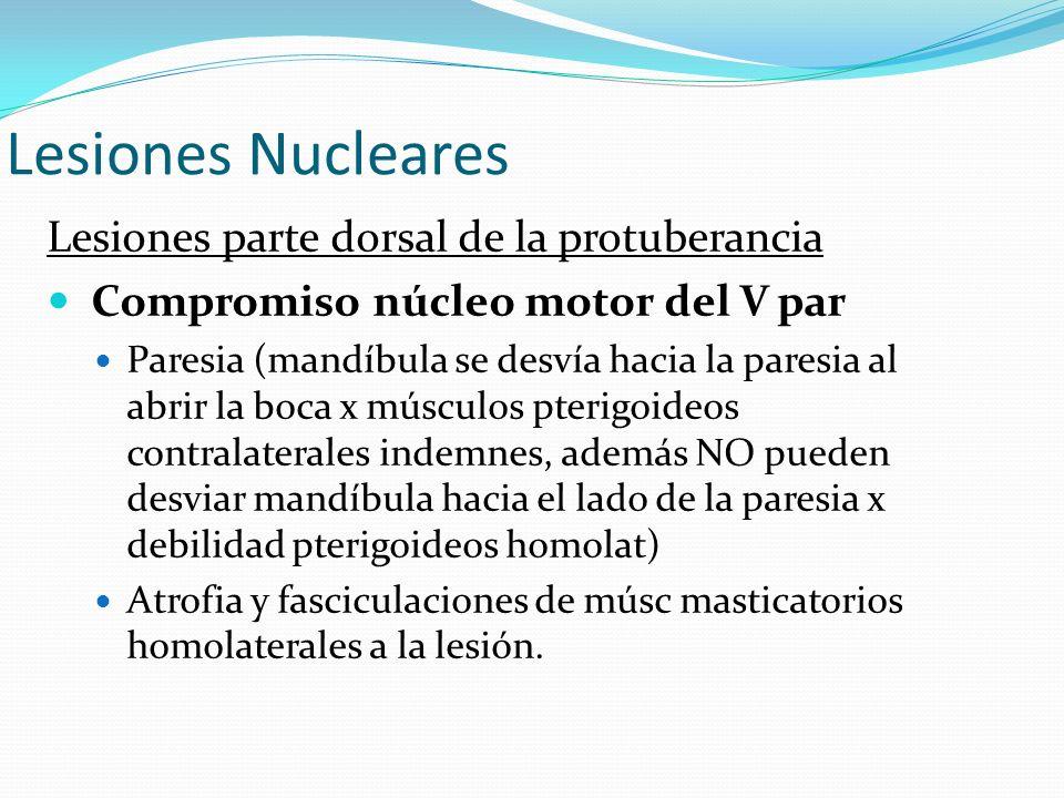 Lesiones Nucleares Lesiones parte dorsal de la protuberancia