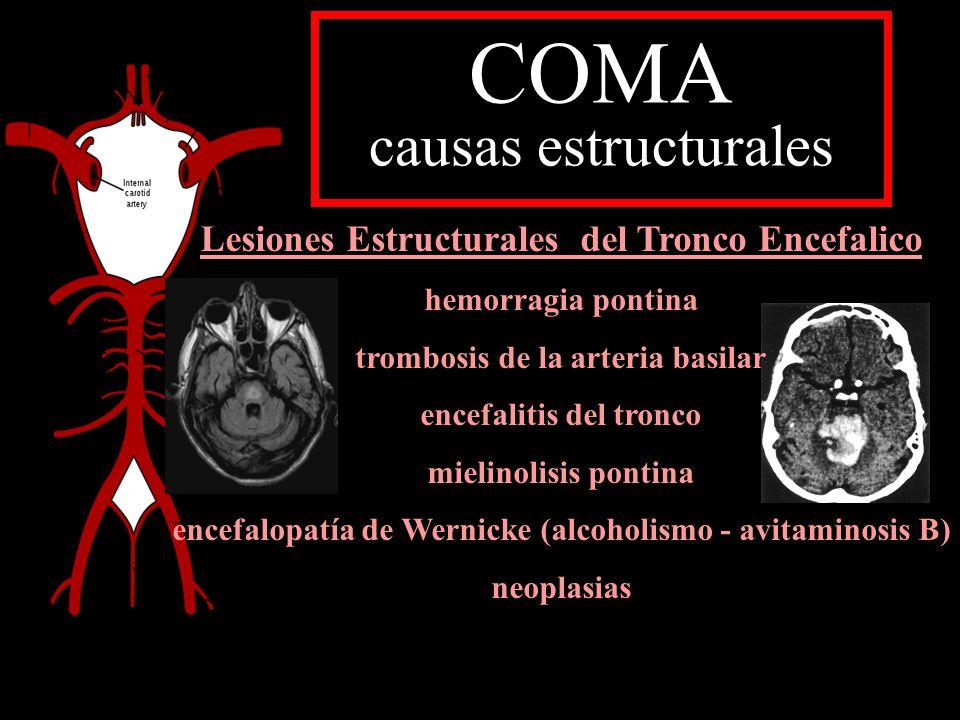 COMA causas estructurales
