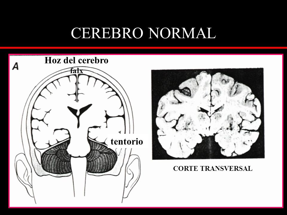CEREBRO NORMAL Hoz del cerebro falx tentorio CORTE TRANSVERSAL