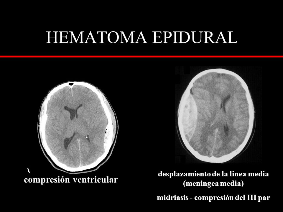 HEMATOMA EPIDURAL compresión ventricular