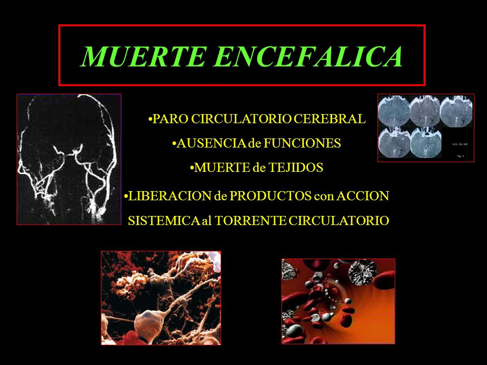 MUERTE ENCEFALICA PARO CIRCULATORIO CEREBRAL AUSENCIA de FUNCIONES