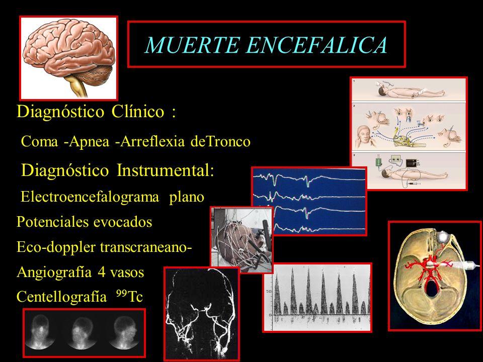 MUERTE ENCEFALICA Diagnóstico Clínico :