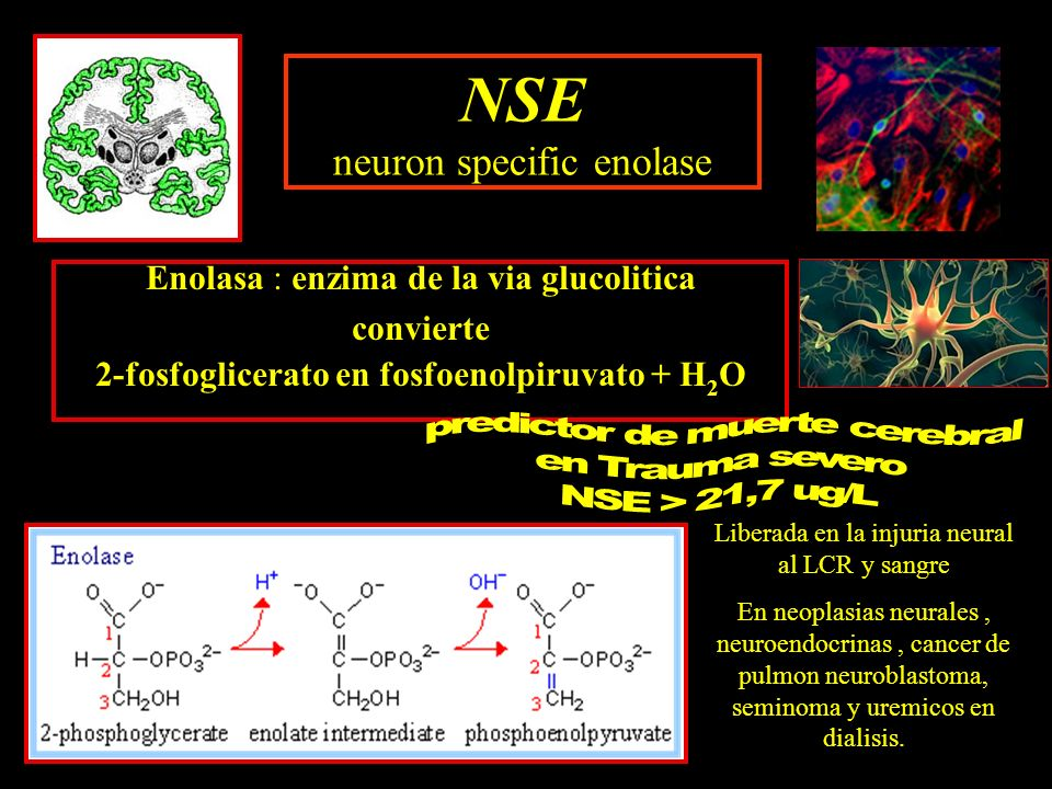 NSE neuron specific enolase