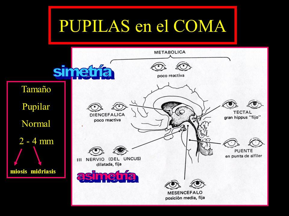 PUPILAS en el COMA simetría asimetría Tamaño Pupilar Normal 2 - 4 mm
