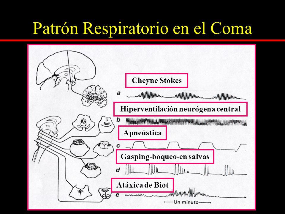 Patrón Respiratorio en el Coma