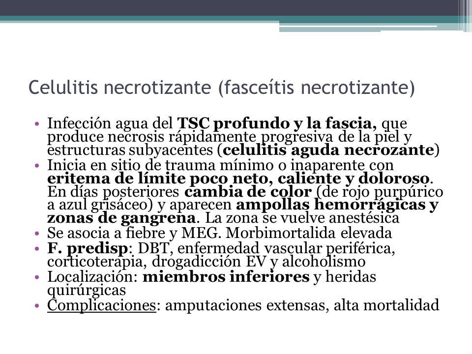 Celulitis necrotizante (fasceítis necrotizante)