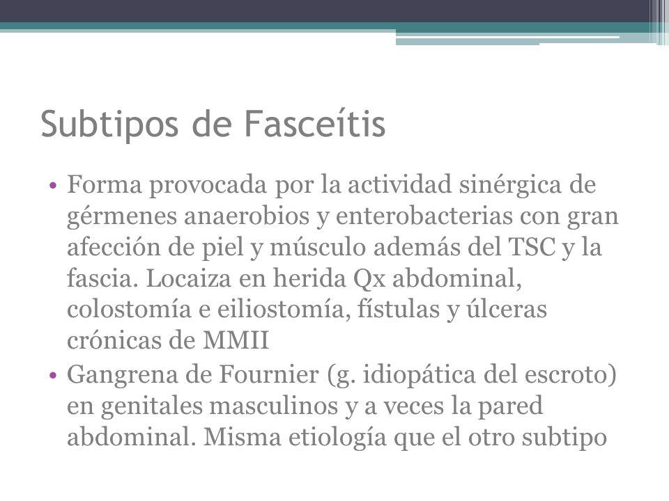 Subtipos de Fasceítis