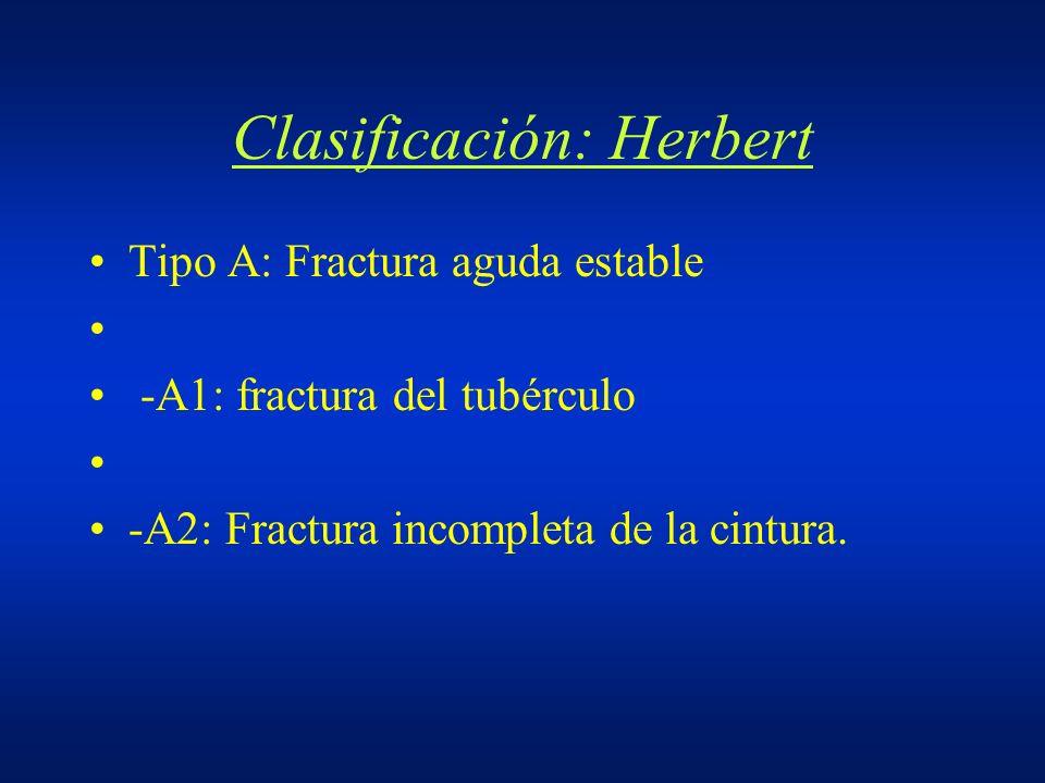 Clasificación: Herbert