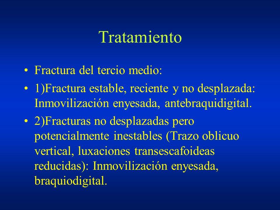 Tratamiento Fractura del tercio medio: