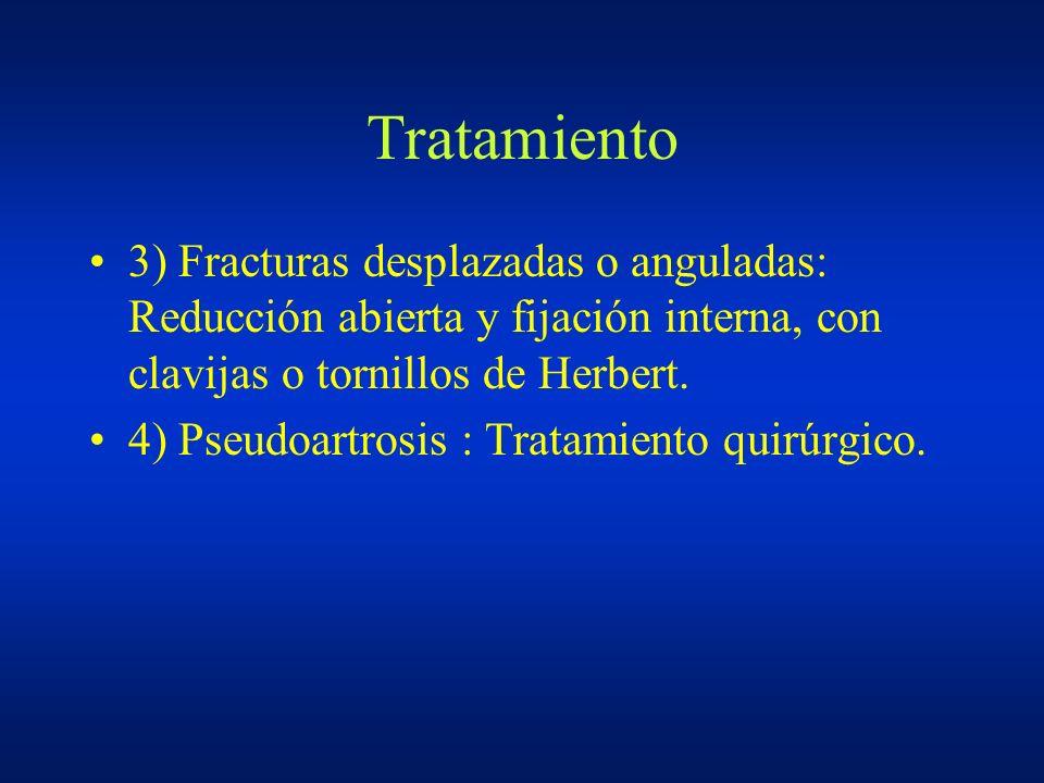 Tratamiento 3) Fracturas desplazadas o anguladas: Reducción abierta y fijación interna, con clavijas o tornillos de Herbert.