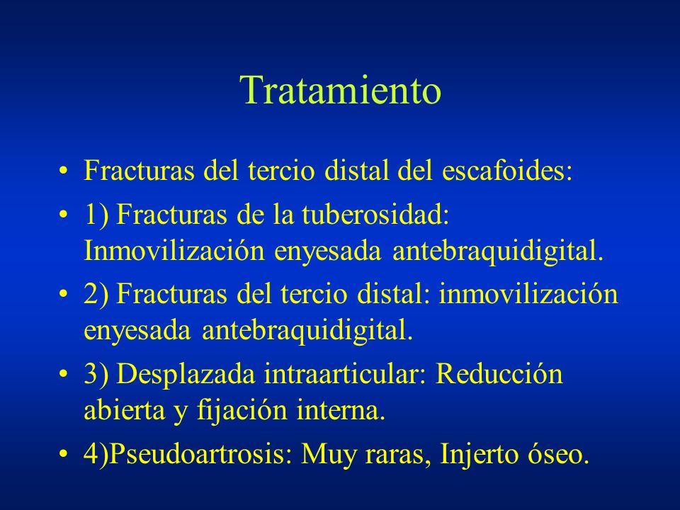 Tratamiento Fracturas del tercio distal del escafoides: