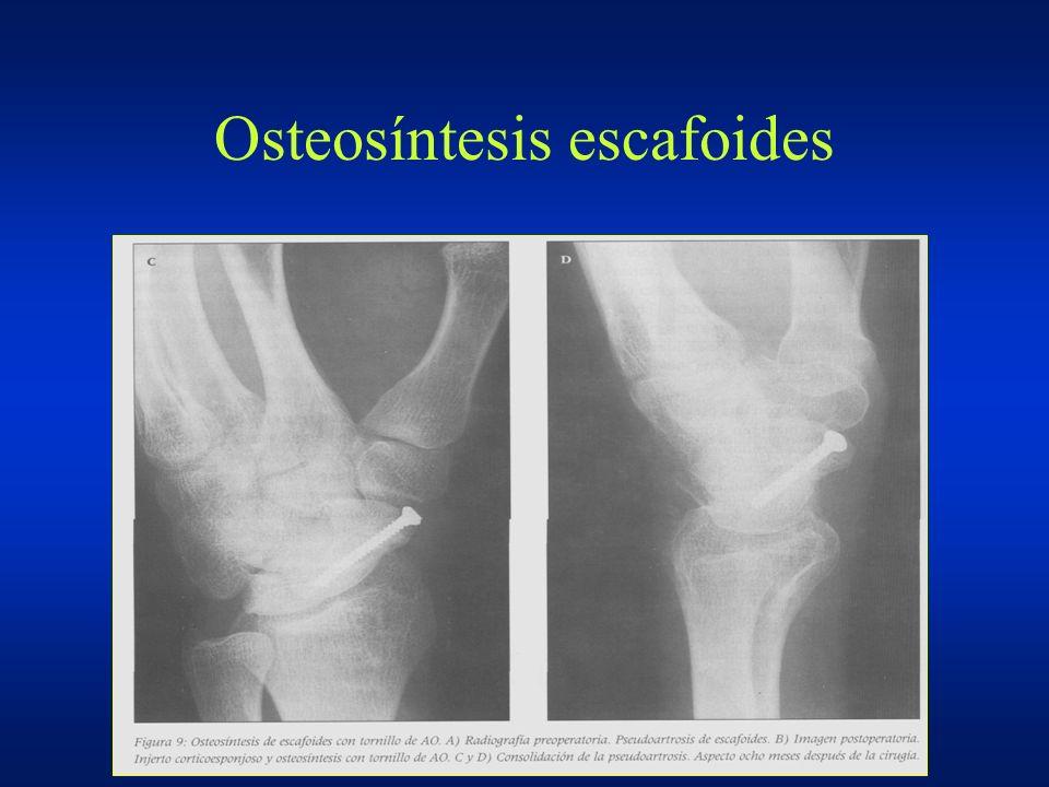 Osteosíntesis escafoides