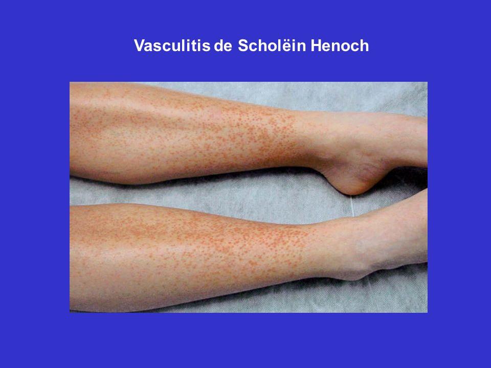 Vasculitis de Scholëin Henoch