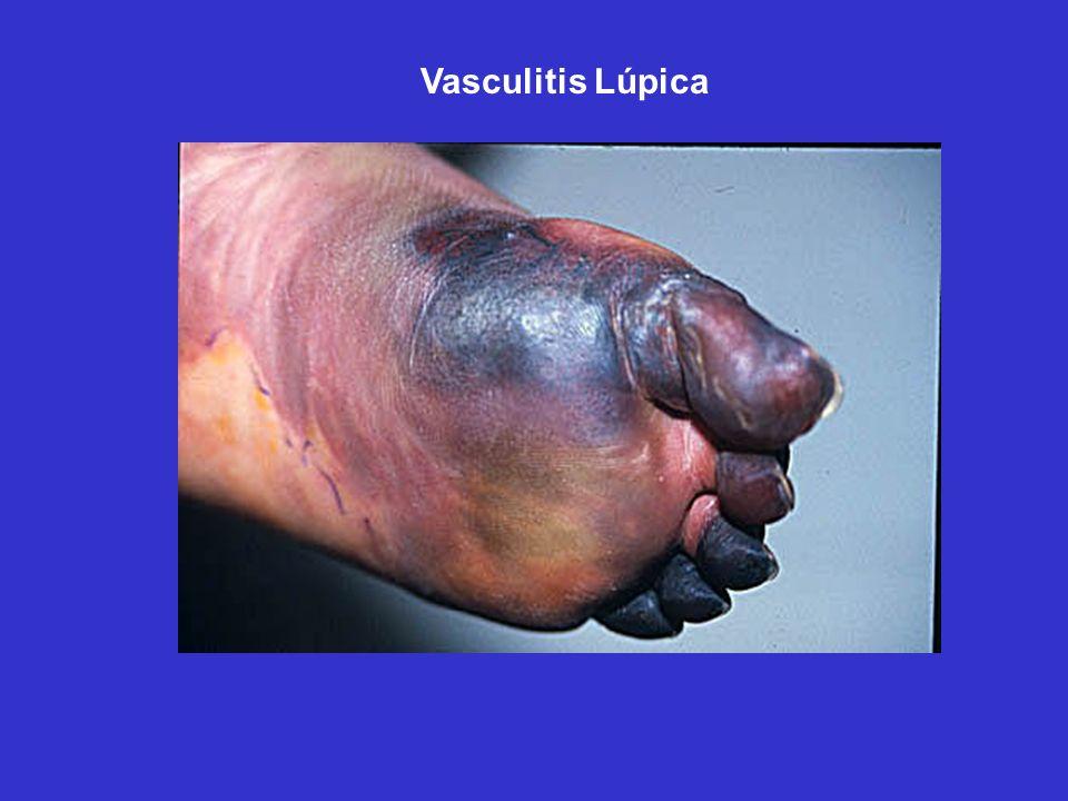 Vasculitis Lúpica