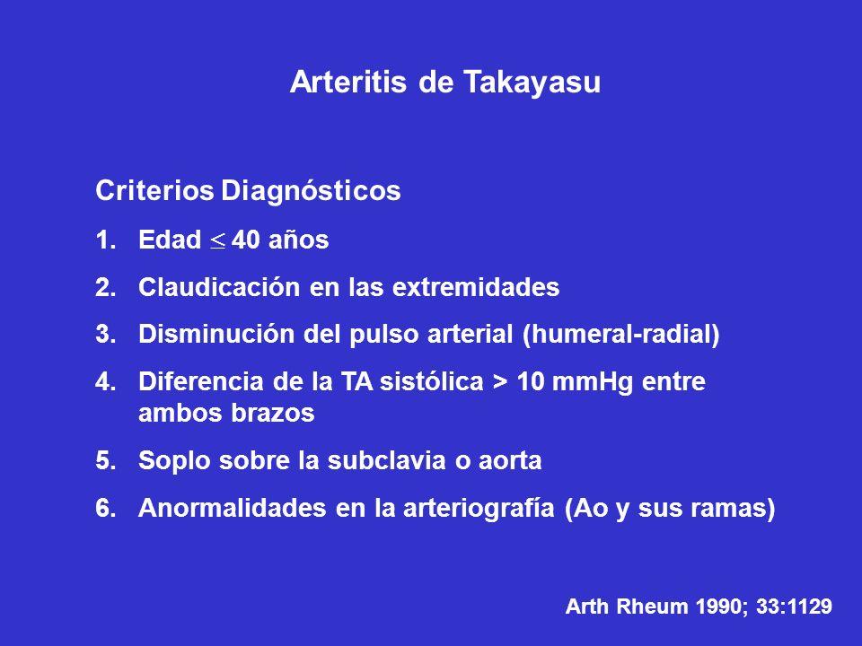 Arteritis de Takayasu Criterios Diagnósticos Edad  40 años