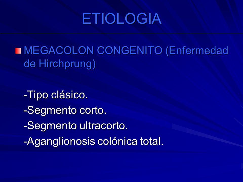 ETIOLOGIA MEGACOLON CONGENITO (Enfermedad de Hirchprung)