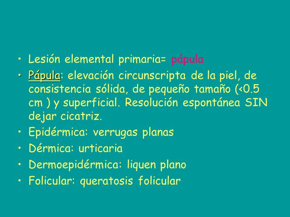Lesión elemental primaria= pápula