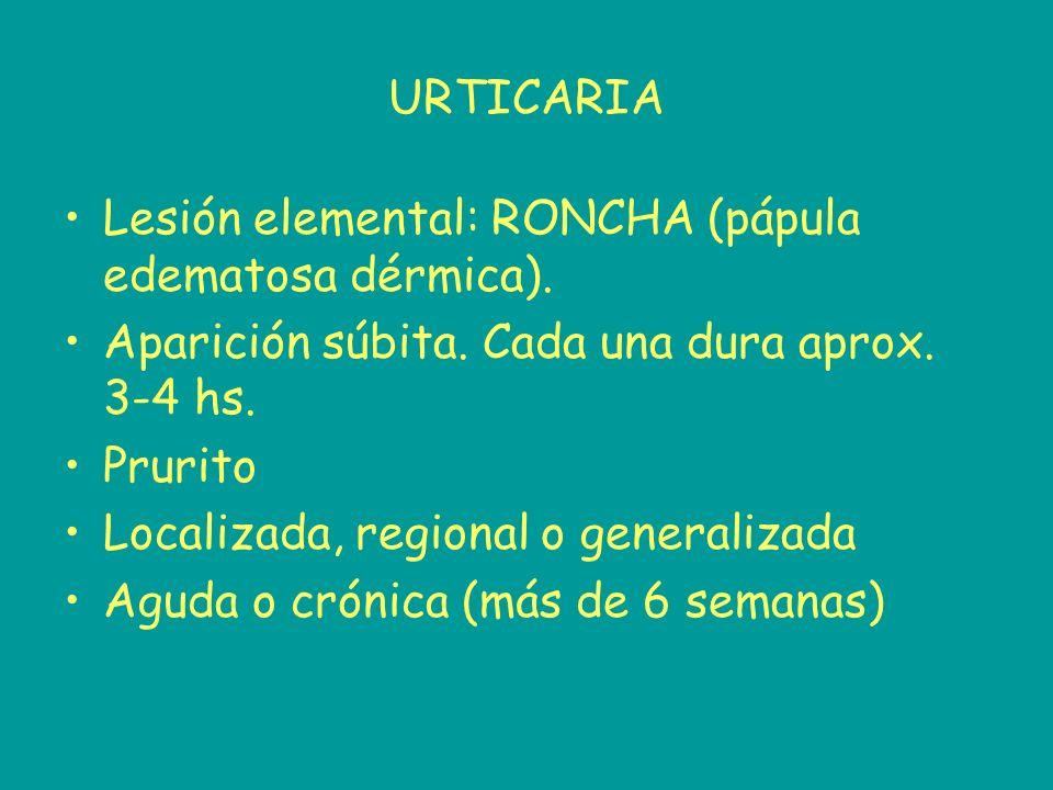 URTICARIA Lesión elemental: RONCHA (pápula edematosa dérmica). Aparición súbita. Cada una dura aprox. 3-4 hs.
