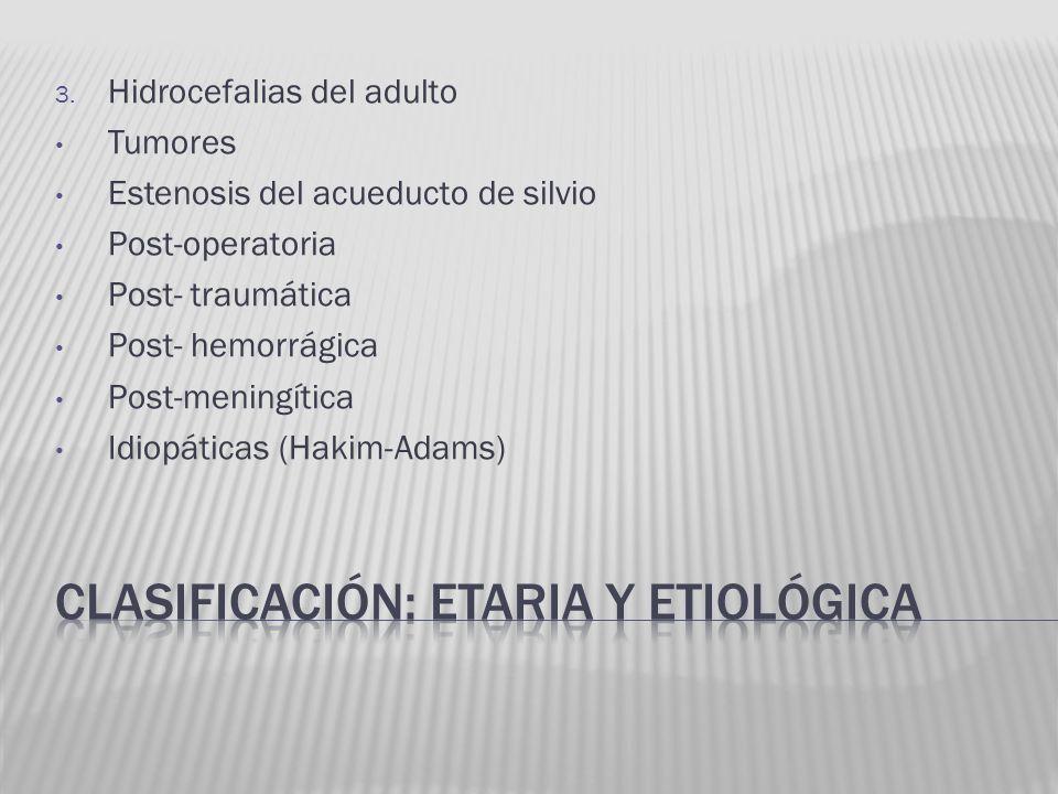 Clasificación: etaria y etiológica