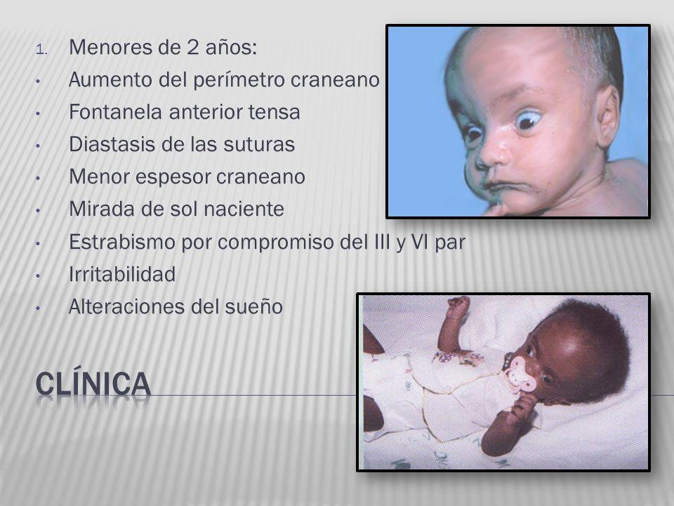 clínica Menores de 2 años: Aumento del perímetro craneano
