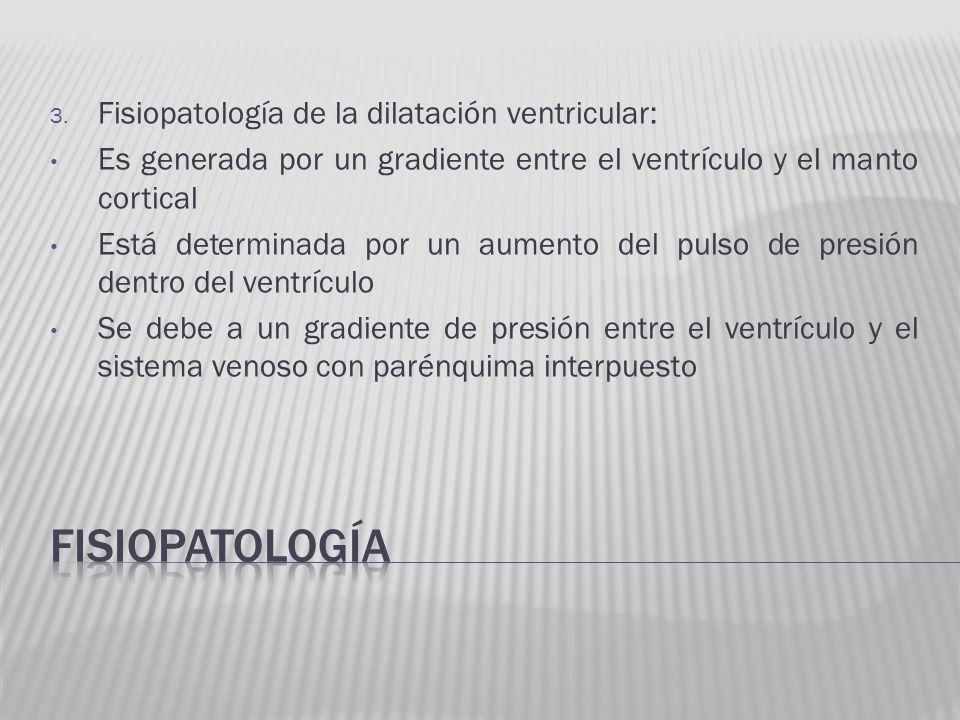 fisiopatología Fisiopatología de la dilatación ventricular: