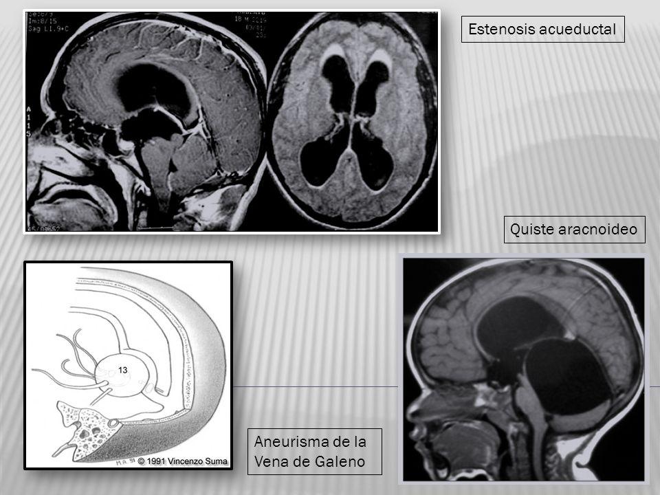 Estenosis acueductal Quiste aracnoideo Aneurisma de la Vena de Galeno