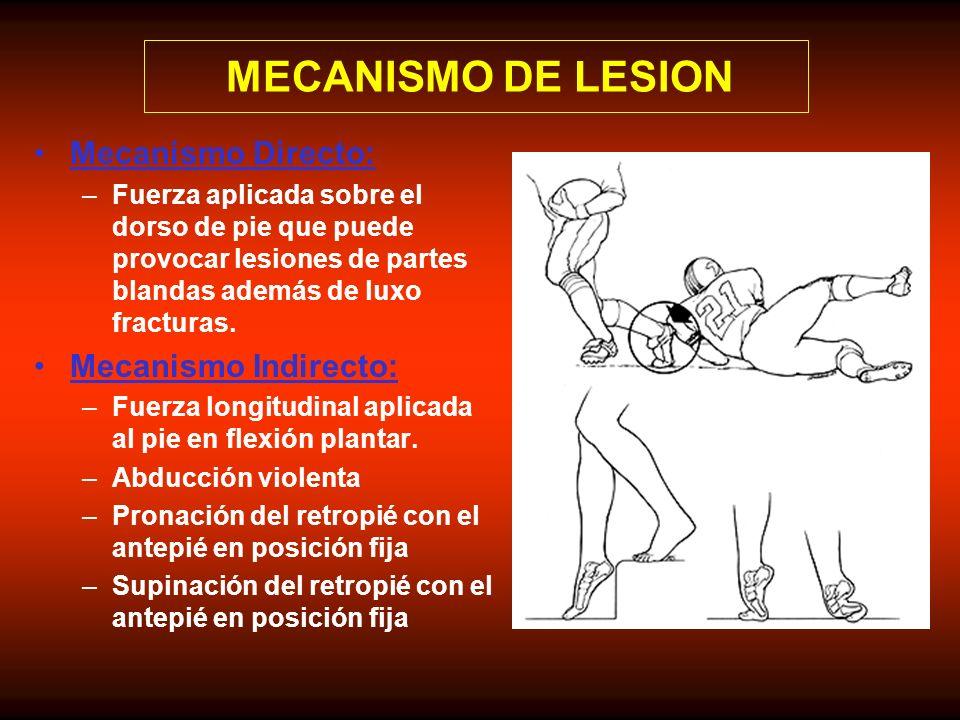 MECANISMO DE LESION Mecanismo Directo: Mecanismo Indirecto: