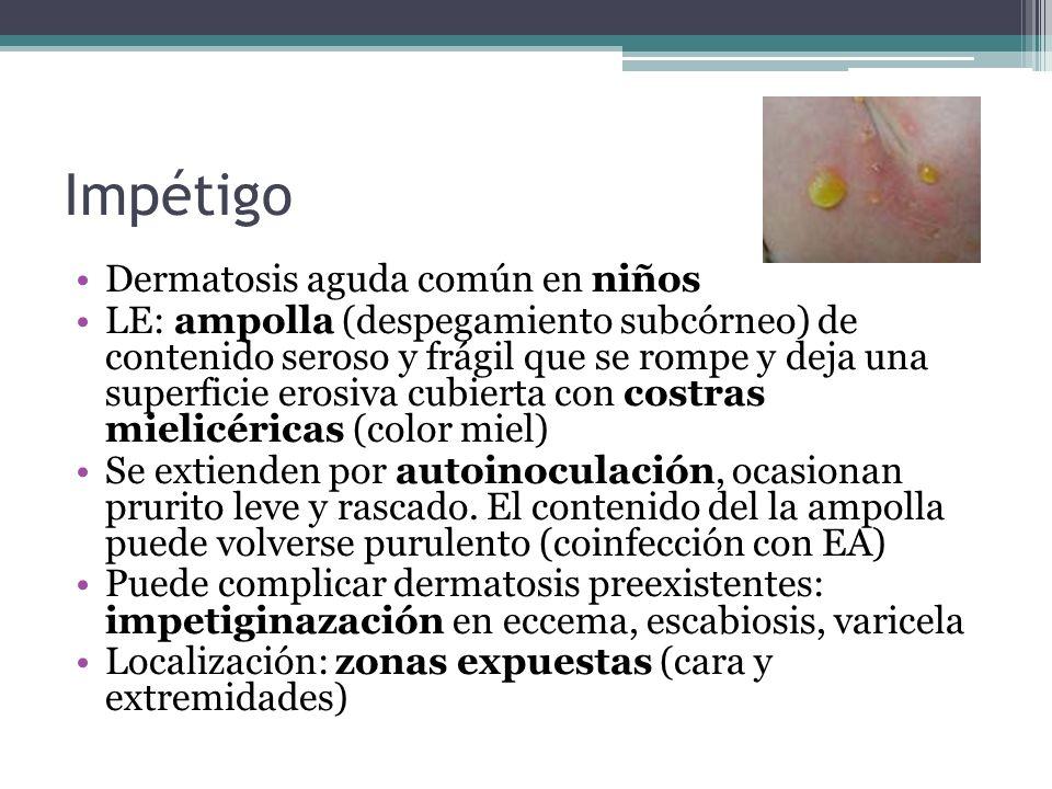 Impétigo Dermatosis aguda común en niños