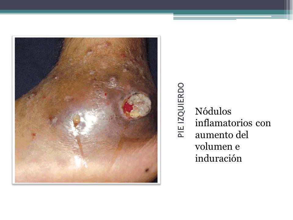 Nódulos inflamatorios con aumento del volumen e induración