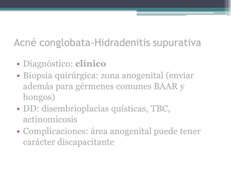 Acné conglobata-Hidradenitis supurativa