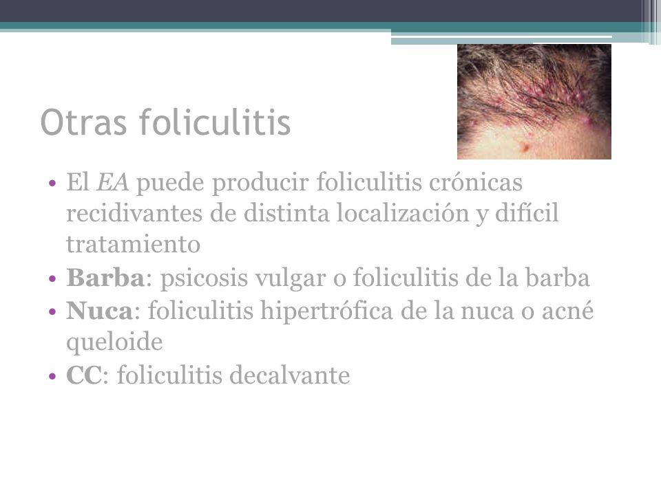 Otras foliculitis El EA puede producir foliculitis crónicas recidivantes de distinta localización y difícil tratamiento.