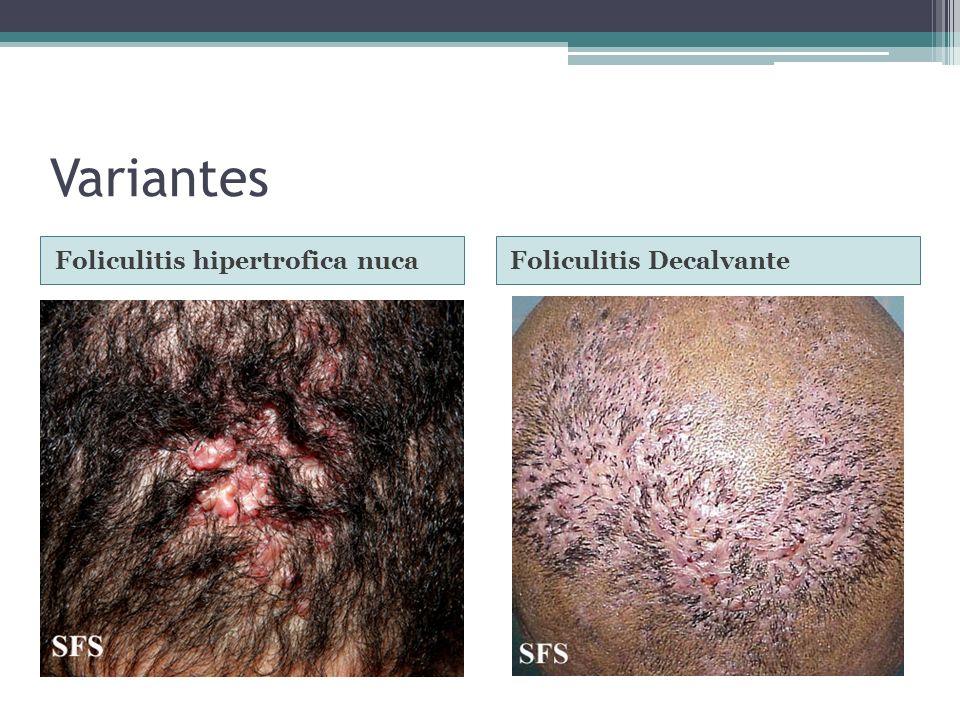 Variantes Foliculitis hipertrofica nuca Foliculitis Decalvante