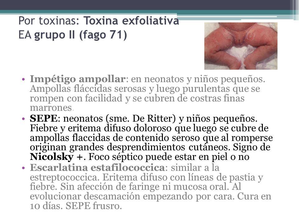 Por toxinas: Toxina exfoliativa EA grupo II (fago 71)