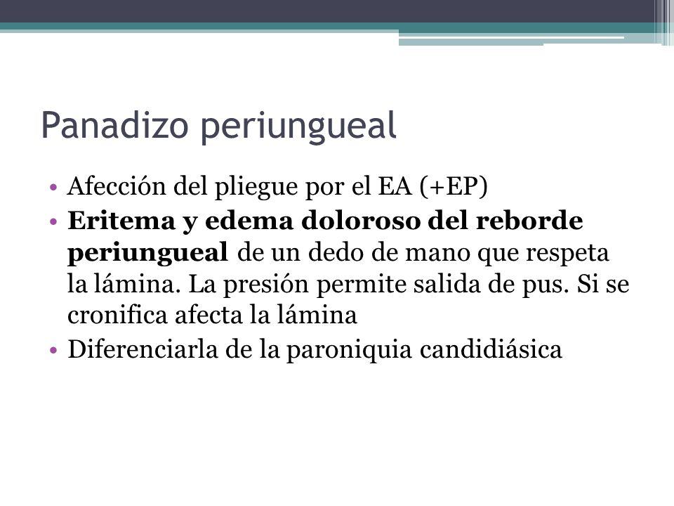 Panadizo periungueal Afección del pliegue por el EA (+EP)