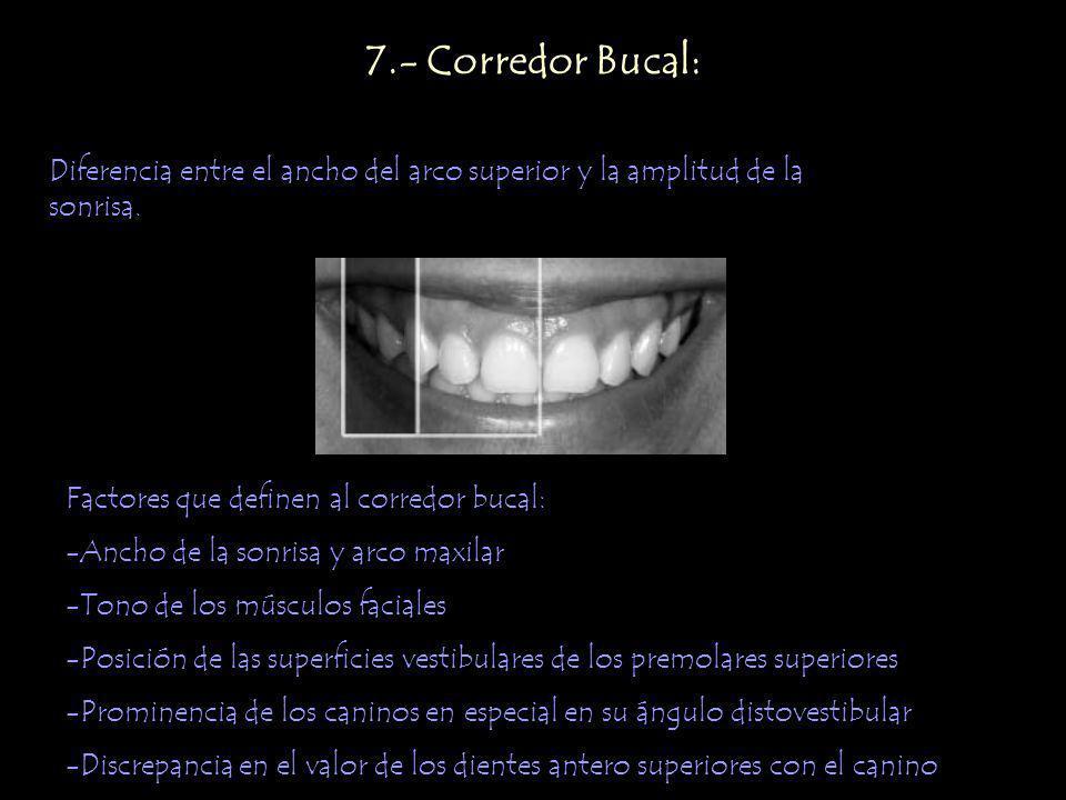 7.- Corredor Bucal: Diferencia entre el ancho del arco superior y la amplitud de la sonrisa. Factores que definen al corredor bucal:
