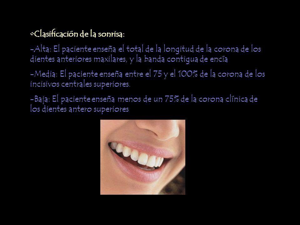 Clasificación de la sonrisa: