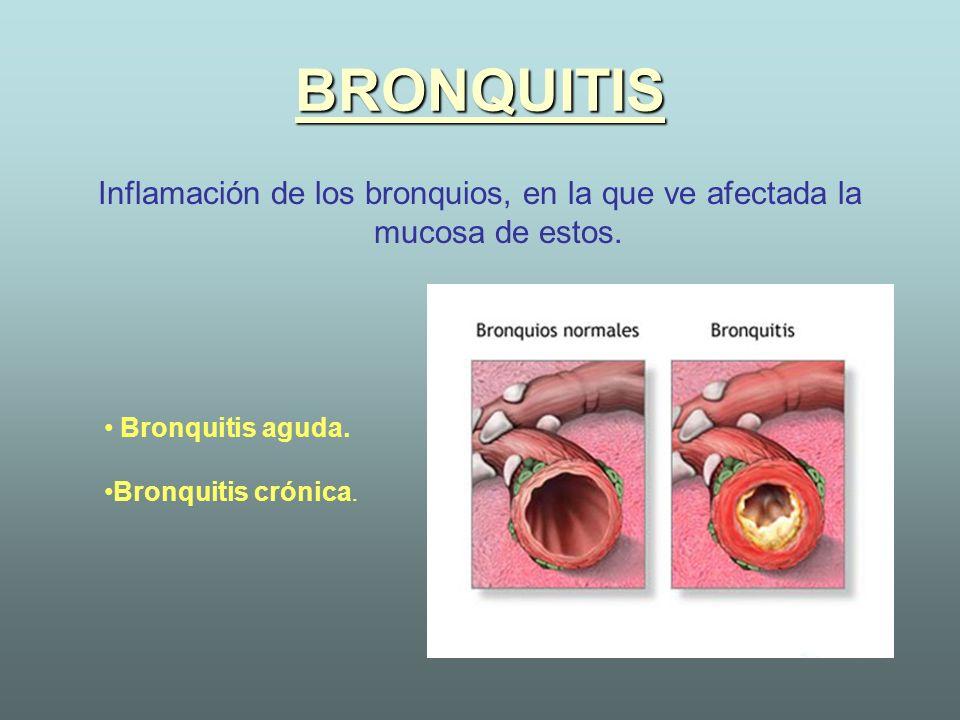 BRONQUITISInflamación de los bronquios, en la que ve afectada la mucosa de estos. Bronquitis aguda.
