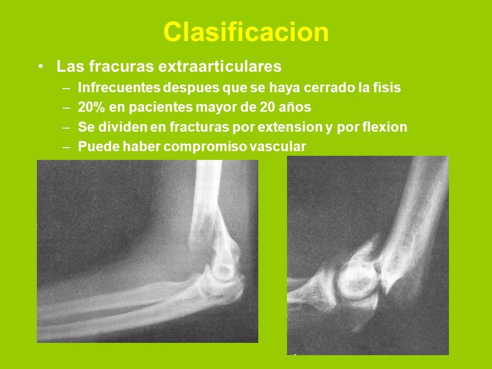 Clasificacion Las fracuras extraarticulares